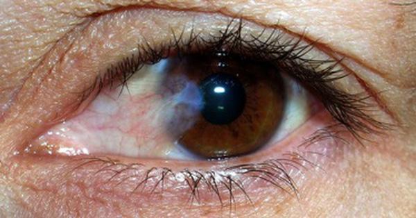 Mộng mắt : những điều cần biết và hướng điều trị